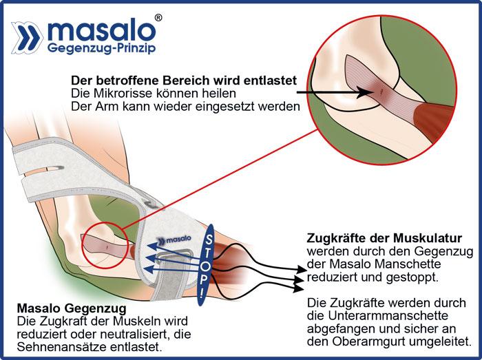 Masalo Gegenzugprinzip bei Tennisarm, Golferarm, Mausarm (Schaubild) entlastet die Sehnenansätze sofort