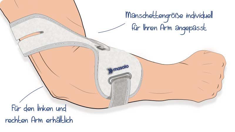 Illustration der angelegten Masalo Manschette mit Schutzelement gegen Epicondylitis (Tennisarm, Golferarm, Mausarm)