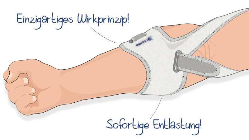 Illustration Masalo Manschette gegen Epicondylitis (Tennisarm, Golferarm, Mausarm)