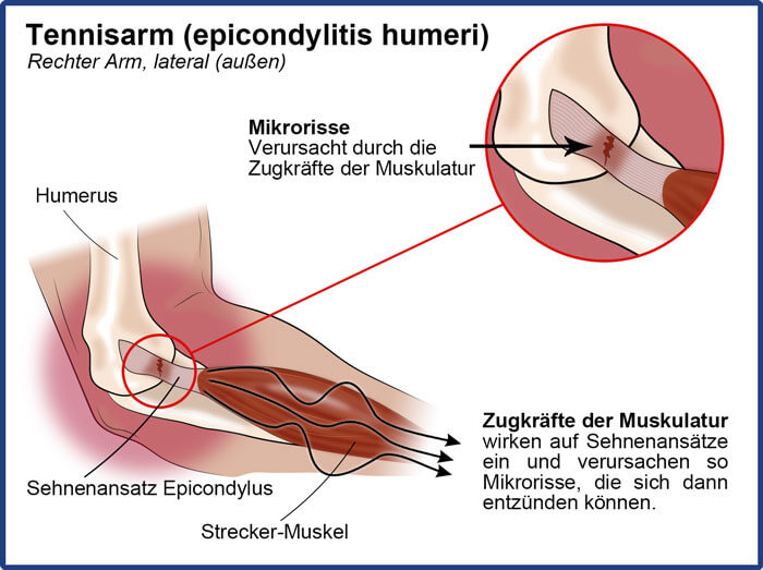 Schaubild der Ursachen (Zugkräfte) des Tennisarm designt von Masalo.eu